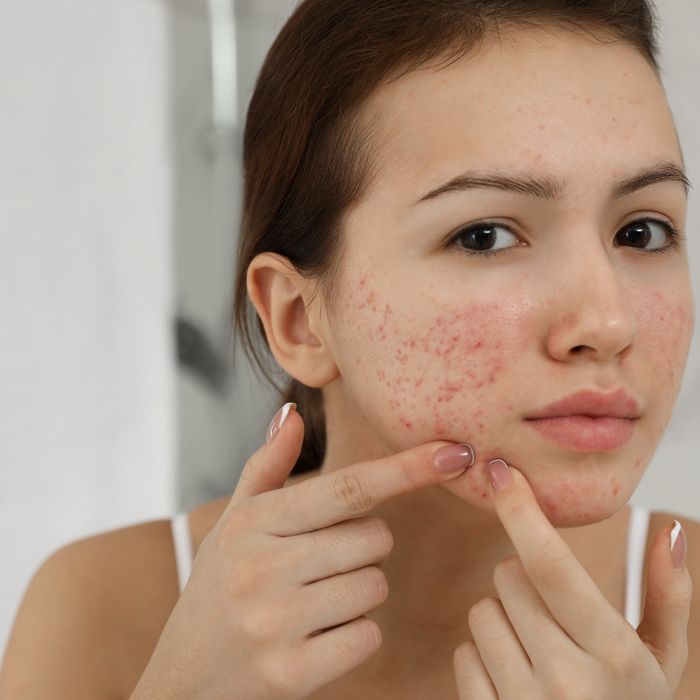 What Causes Skin Congestion? thumbnail image